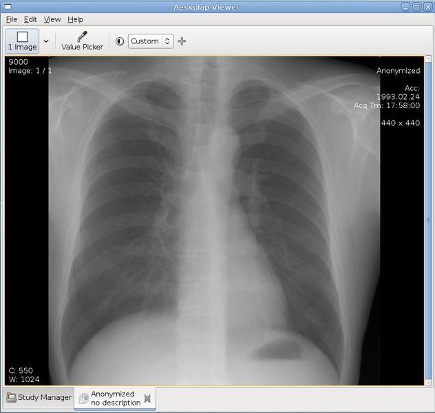 aeskulap — медицинский просмотр изображений и сетевой клиент DICOM