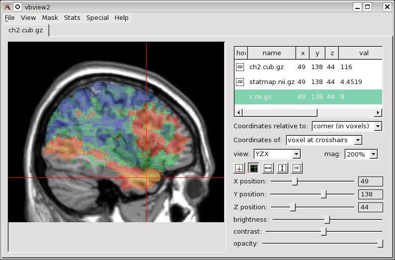 voxbo — обработки, статистического анализа и отображения данных визуализации головного мозга
